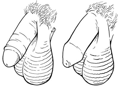 "A circumcised penis <i/></noscript>(l.) with the foreskin removed; an uncircumcised penis <i>(r.)</i> with ""/> <div class="