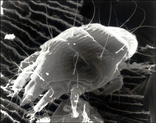 An adult tracheal mite (<i/></noscript>Acarapis woodi).&#8221;/> <div class=
