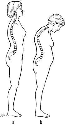 A normal spine (a) and a dowager's hump (b).