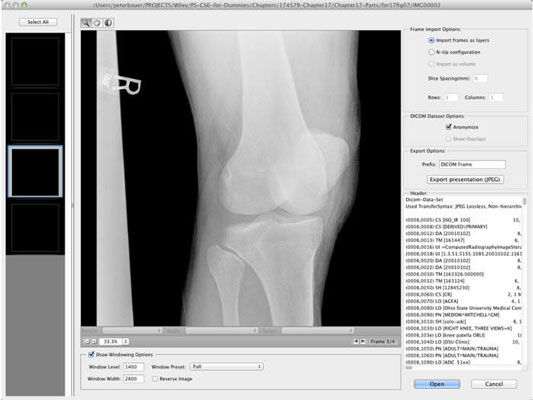 Review medical imagery right in Photoshop CC.