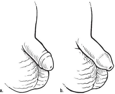 A circumcised penis (a) and an uncircumcised penis (b). [Credit: Illustration by Kathryn Born, MA]