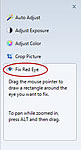 The Fix Red Eye button in Windows Photo Gallery