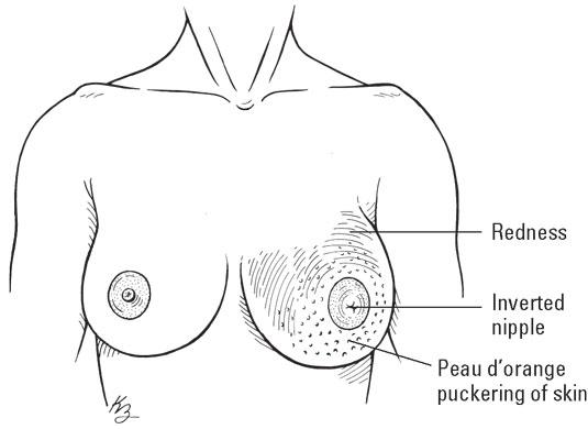 breast-inflammatory