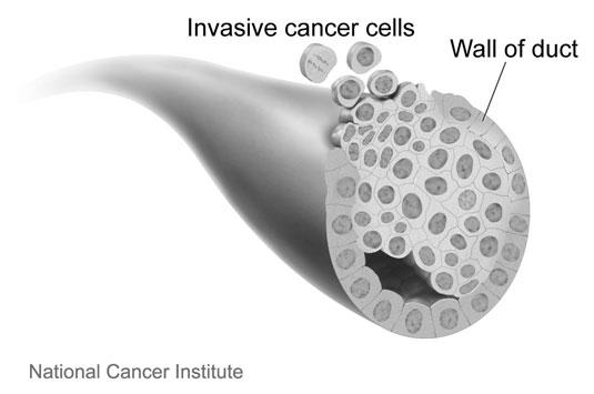 breast-invasive