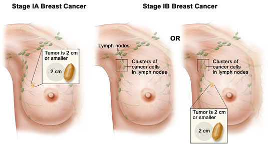 breast-stage-ia