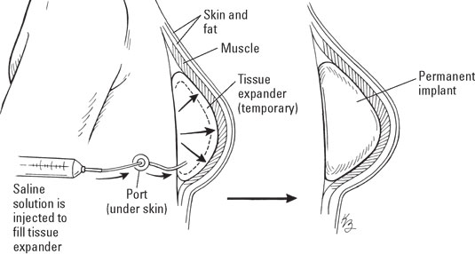 breast-tissue